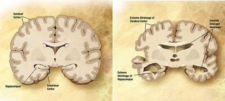Alzheimers-disease-brain-comparison fgcrtetryt