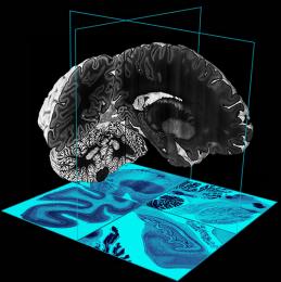 Big-Brain-259x260 refew3r